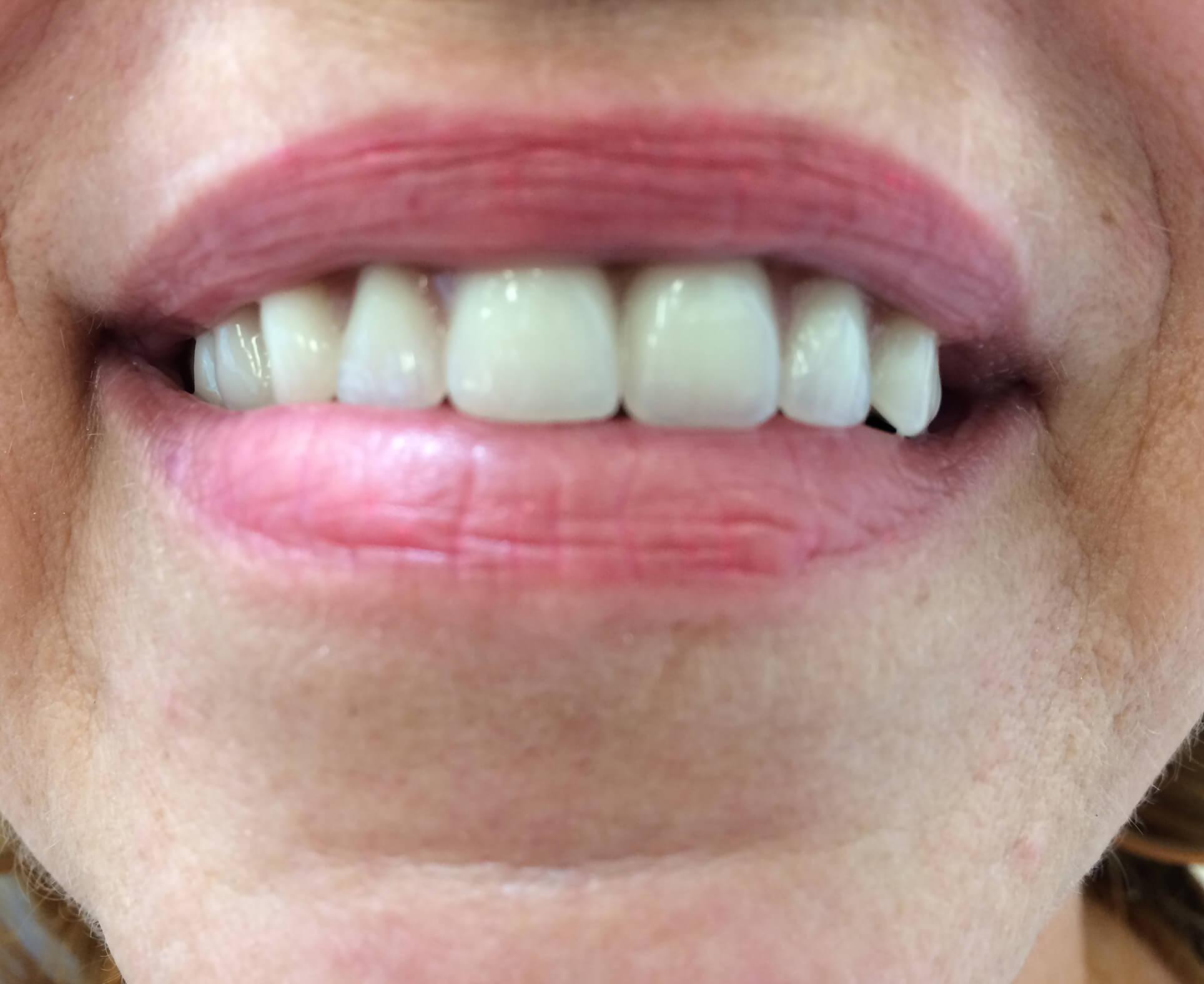 Implanty zęba - efekt poleczeniu - furykclinic