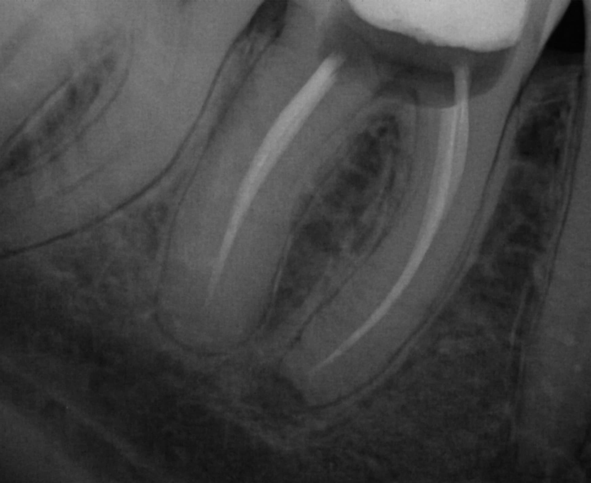 Endodoncja - efekty leczenia Pan Mariusz - Furykclinic